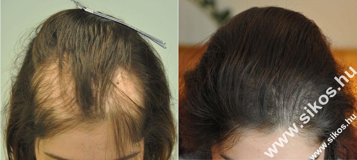A hajbeültetés fájdalommentes